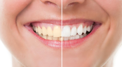 A before & after of teeth whitening treatments.
