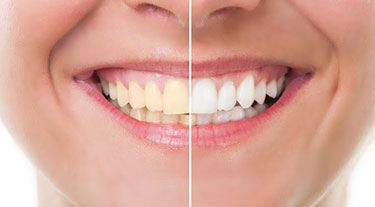 Woman showing before and after images of her teeth to display her teeth whitening results after using Zoom! Teeth Whitening