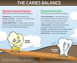 tooth-caries-balance-thumb.jpg